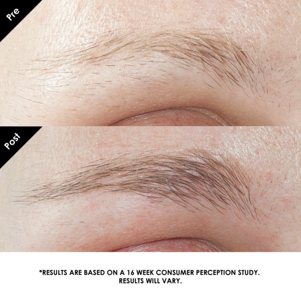 grandebrow before and after